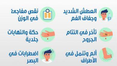 صورة صحتك بالدنيا .. هذه الأعراض تشير إلى إصابتك بمرض السكر
