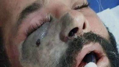 صورة علماء مصريون يحذرون من انتشار  «الفطر الأسود» بسبب سوء استخدام الأدوية
